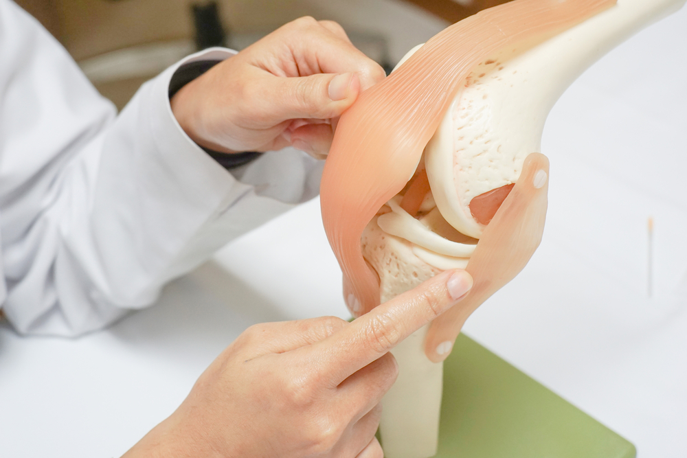 Explaination for knee surgery in Newcastle under Lyme